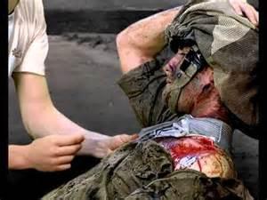 Wound-Soldier