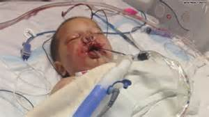 Baby badly injured by police SWAT team using grenade
