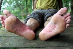 cotton Socks Foot Rot